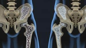 bone with osteoporosis affliction